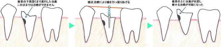 歯茎の下奥深くまで進行した虫歯 このままでは治療ができません→矯正治療により歯を引っ張りあげる→歯茎の上に虫歯が位置し被せる治療が可能になった